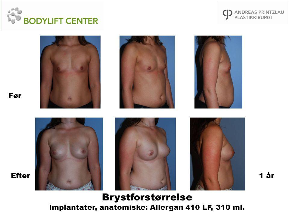 Brystforstørrelse Implantater, anatomiske: Allergan 410 LF, 310 ml. Før Efter1 år