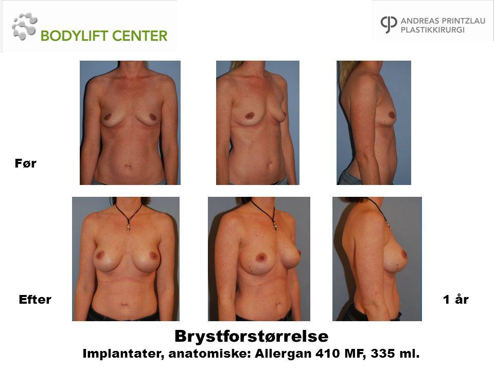 Brystforstørrelse Implantater, anatomiske: Allergan 410 MF, 335 ml. Før Efter1 år