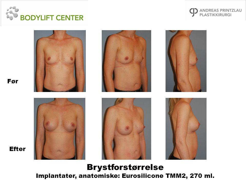 Brystforstørrelse Implantater, anatomiske: Eurosilicone TMM2, 270 ml. Før Efter