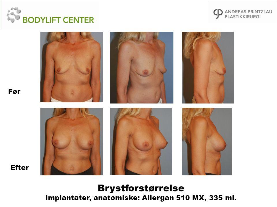Brystforstørrelse Implantater, anatomiske: Allergan 510 MX, 335 ml. Før Efter