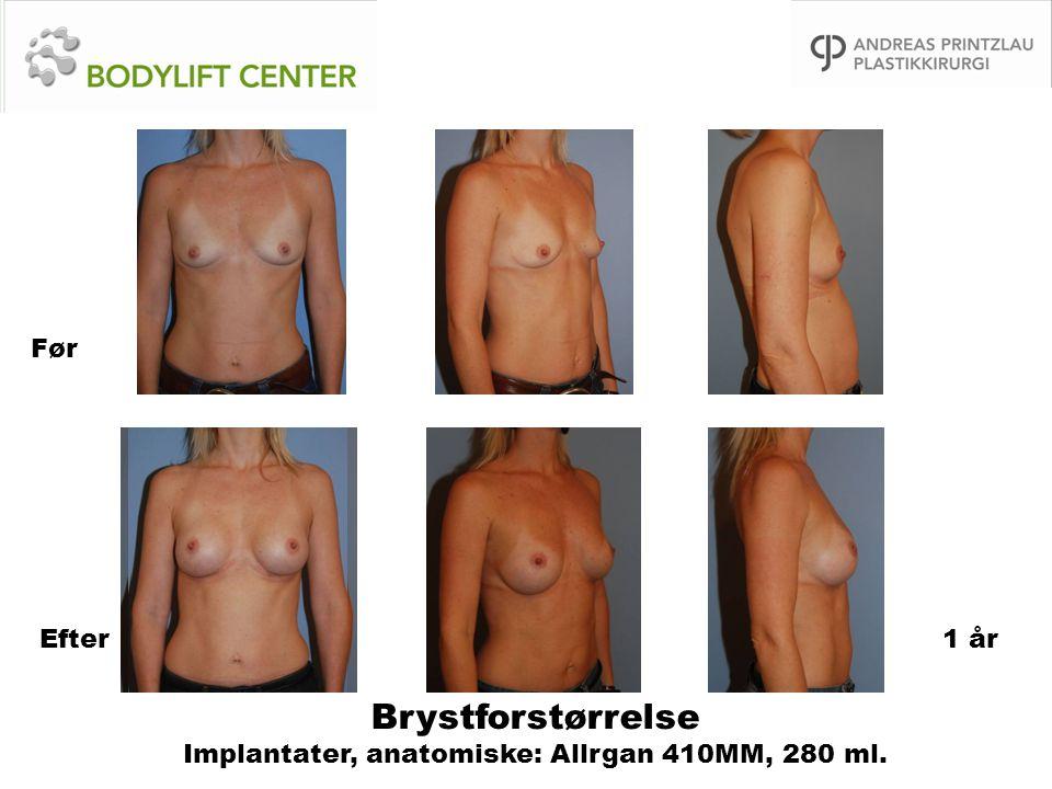 Brystforstørrelse Implantater, anatomiske: Allrgan 410MM, 280 ml. Før Efter1 år