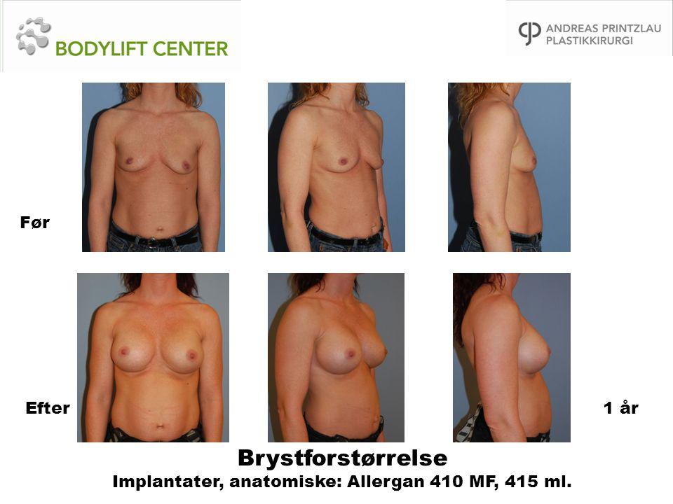Brystforstørrelse Implantater, anatomiske: Allergan 410 MF, 415 ml. Før Efter1 år