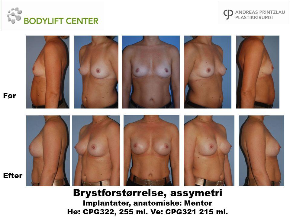 Brystforstørrelse, assymetri Implantater, anatomiske: Mentor Hø: CPG322, 255 ml. Ve: CPG321 215 ml. Før Efter