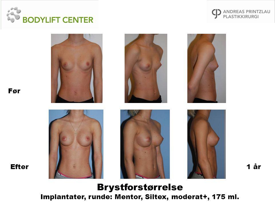 Brystforstørrelse Implantater, runde: Mentor, Siltex, moderat+, 175 ml. Før Efter1 år