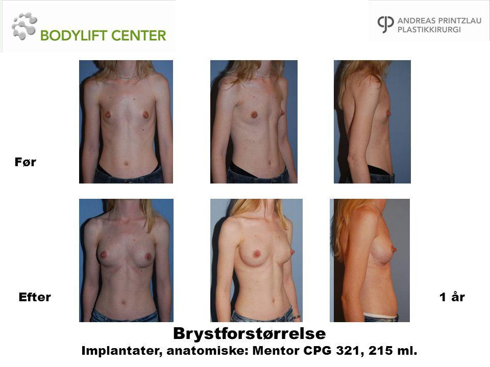 Brystforstørrelse Implantater, anatomiske: Mentor CPG 321, 215 ml. Før Efter1 år