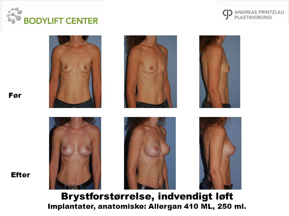 Brystforstørrelse, indvendigt løft Implantater, anatomiske: Allergan 410 ML, 250 ml. Før Efter