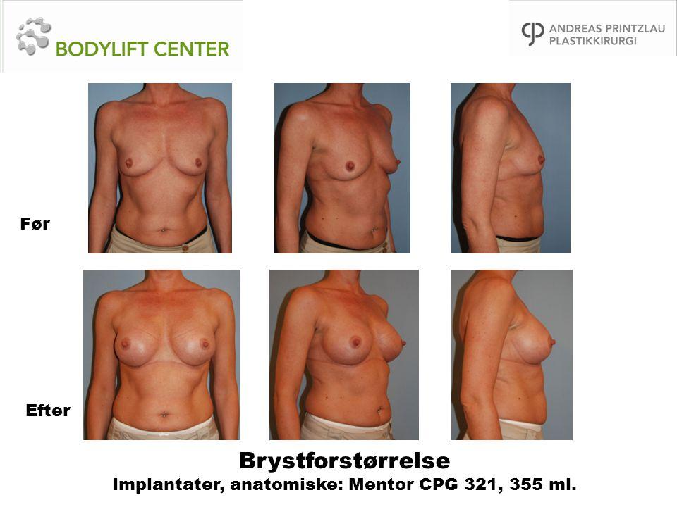 Brystforstørrelse Implantater, anatomiske: Mentor CPG 321, 355 ml. Før Efter