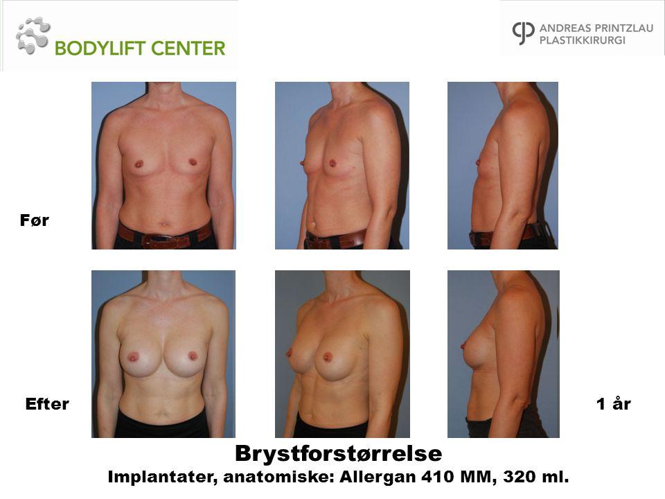 Brystforstørrelse Implantater, anatomiske: Allergan 410 MM, 320 ml. Før Efter1 år