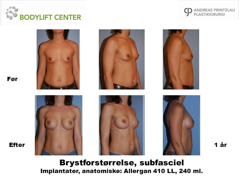 Brystforstørrelse, subfasciel Implantater, anatomiske: Allergan 410 LL, 240 ml. Før Efter1 år
