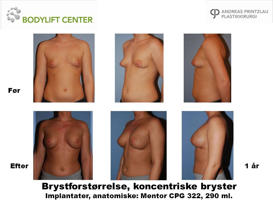 Brystforstørrelse, koncentriske bryster Implantater, anatomiske: Mentor CPG 322, 290 ml. Før Efter1 år