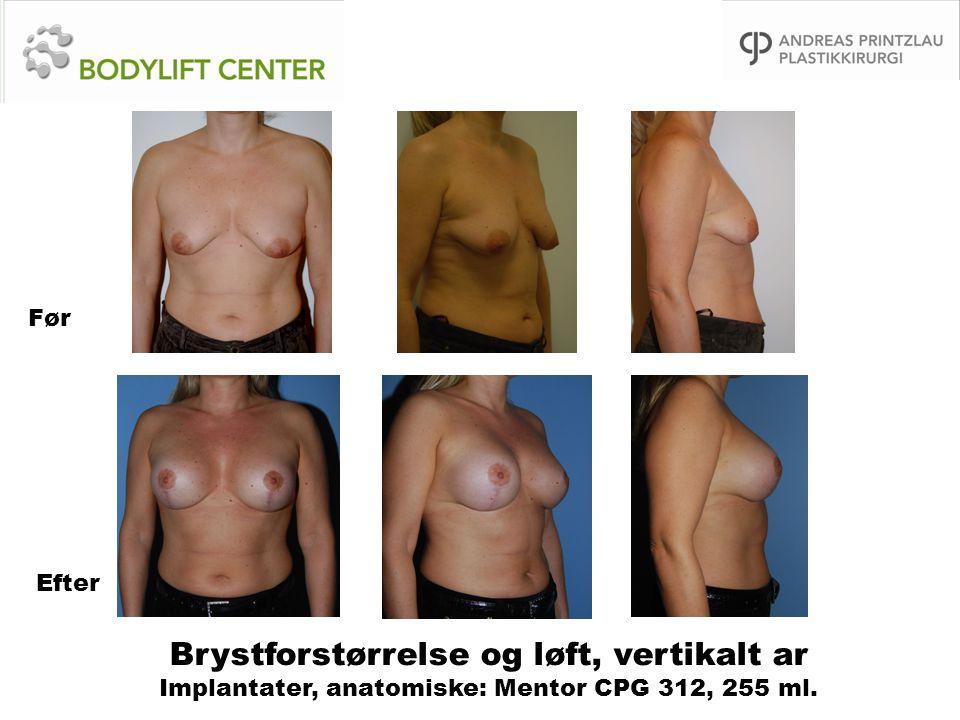 Brystforstørrelse og løft, vertikalt ar Implantater, anatomiske: Mentor CPG 312, 255 ml. Før Efter