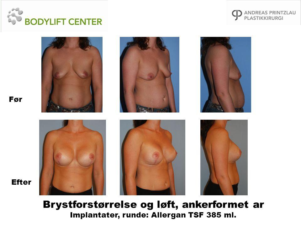 Brystforstørrelse og løft, ankerformet ar Implantater, runde: Allergan TSF 385 ml. Før Efter