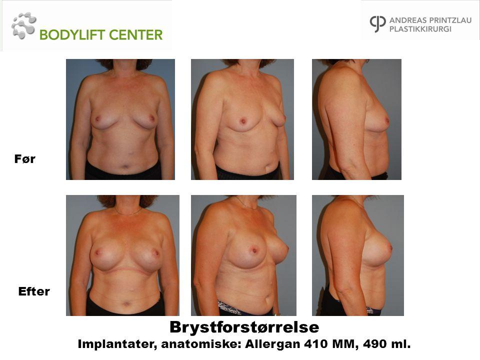 Brystforstørrelse Implantater, anatomiske: Allergan 410 MM, 490 ml. Før Efter