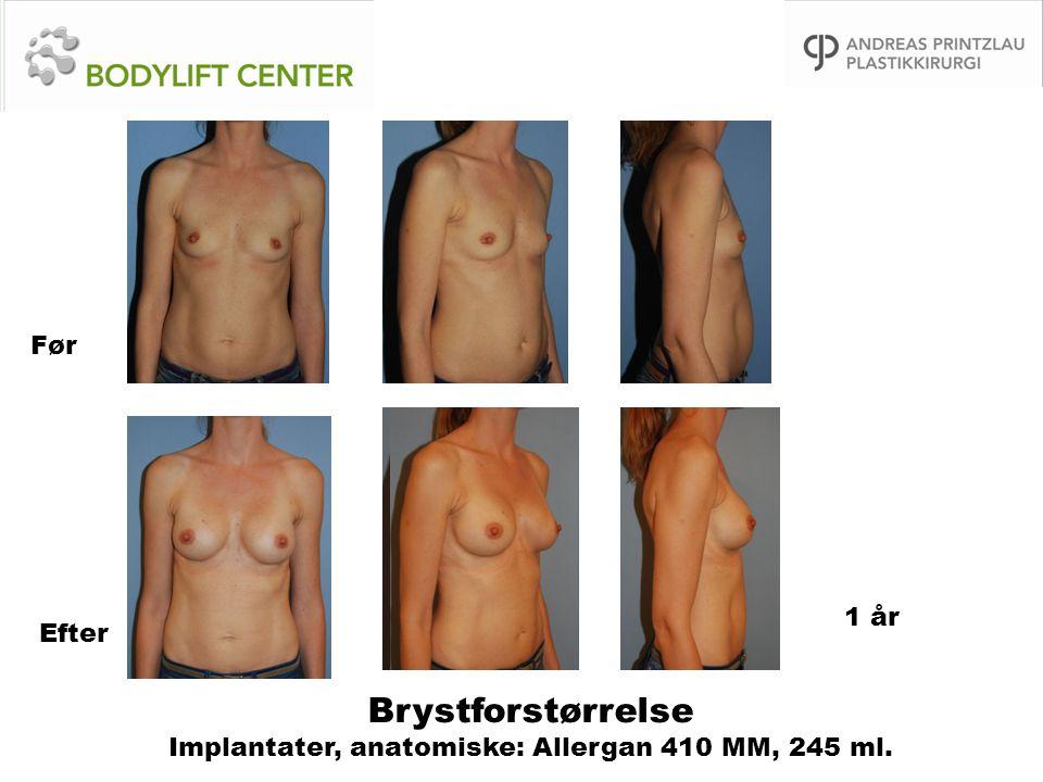 Brystforstørrelse Implantater, anatomiske: Allergan 410 MM, 245 ml. Før Efter 1 år