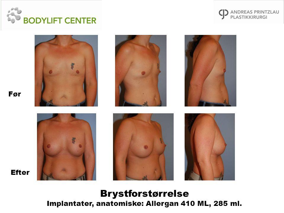 Brystforstørrelse Implantater, anatomiske: Allergan 410 ML, 285 ml. Før Efter
