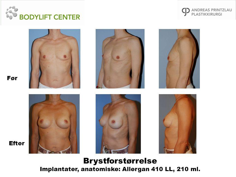 Brystforstørrelse Implantater, anatomiske: Allergan 410 LL, 210 ml. Før Efter