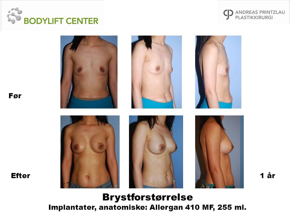 Brystforstørrelse Implantater, anatomiske: Allergan 410 MF, 255 ml. Før Efter1 år