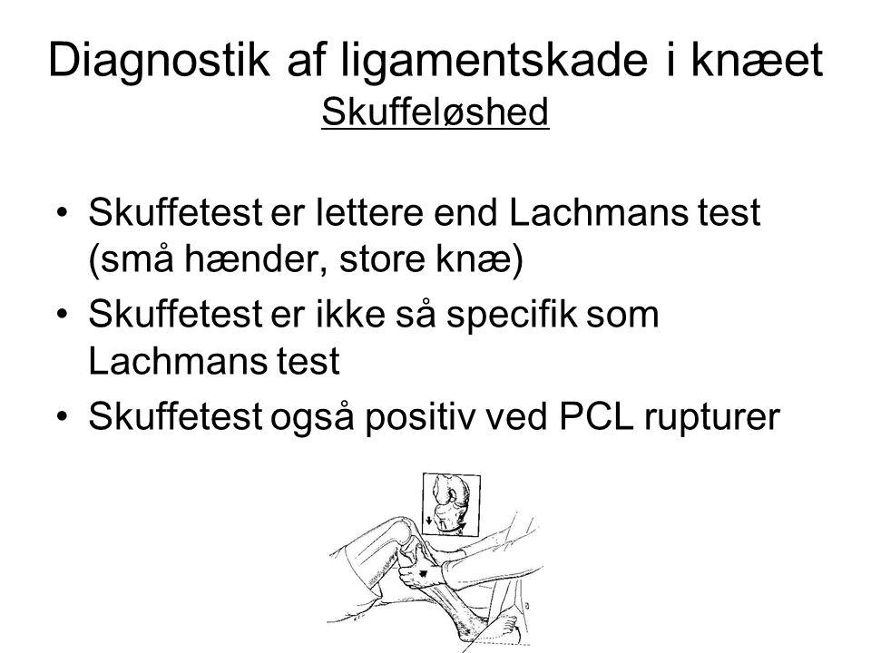 Diagnostik af ligamentskade i knæet Skuffeløshed • Skuffetest er lettere end Lachmans test (små hænder, store knæ) • Skuffetest er ikke så specifik so