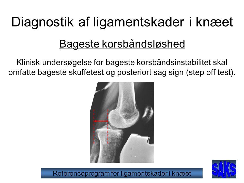 Referenceprogram for ligamentskader i knæet Diagnostik af ligamentskader i knæet Bageste korsbåndsløshed Klinisk undersøgelse for bageste korsbåndsinstabilitet skal omfatte bageste skuffetest og posteriort sag sign (step off test).