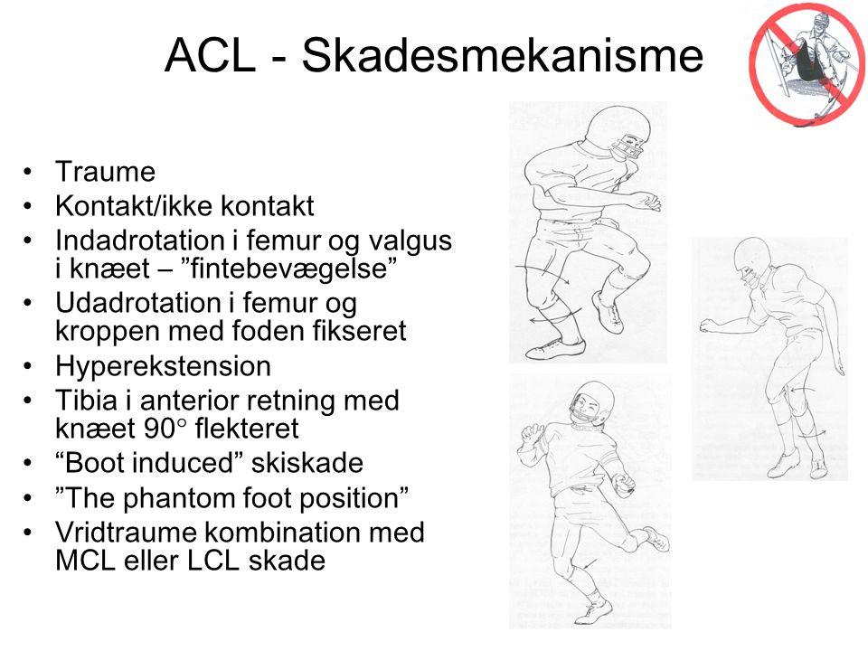 ACL - Skadesmekanisme • Traume • Kontakt/ikke kontakt • Indadrotation i femur og valgus i knæet – fintebevægelse • Udadrotation i femur og kroppen med foden fikseret • Hyperekstension • Tibia i anterior retning med knæet 90  flekteret • Boot induced skiskade • The phantom foot position • Vridtraume kombination med MCL eller LCL skade