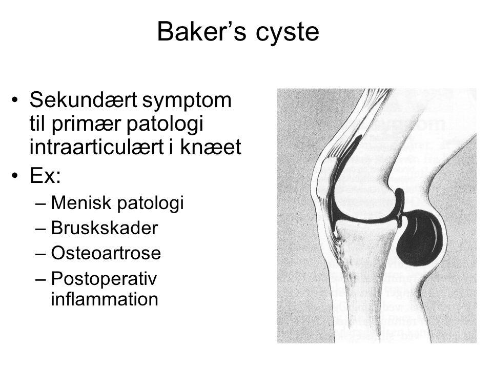 Baker's cyste • Sekundært symptom til primær patologi intraarticulært i knæet • Ex: – Menisk patologi – Bruskskader – Osteoartrose – Postoperativ inflammation