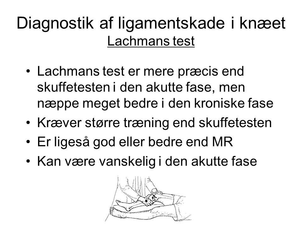 Diagnostik af ligamentskade i knæet Skuffeløshed • Skuffetest er lettere end Lachmans test (små hænder, store knæ) • Skuffetest er ikke så specifik som Lachmans test • Skuffetest også positiv ved PCL rupturer