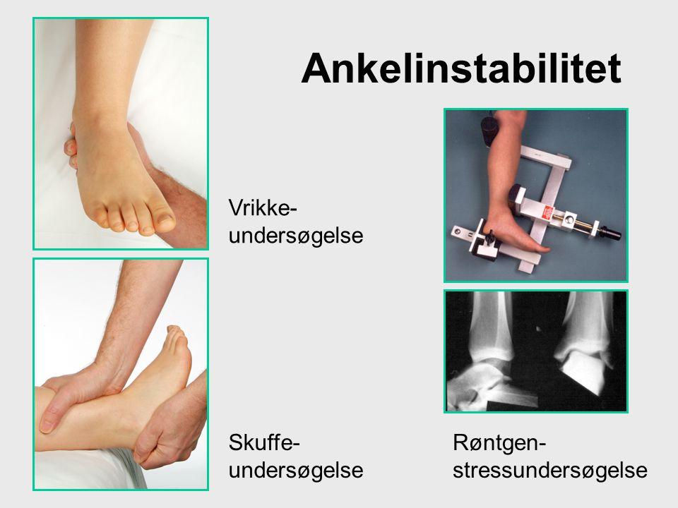 Ankelinstabilitet Vrikke- undersøgelse Skuffe- undersøgelse Røntgen- stressundersøgelse
