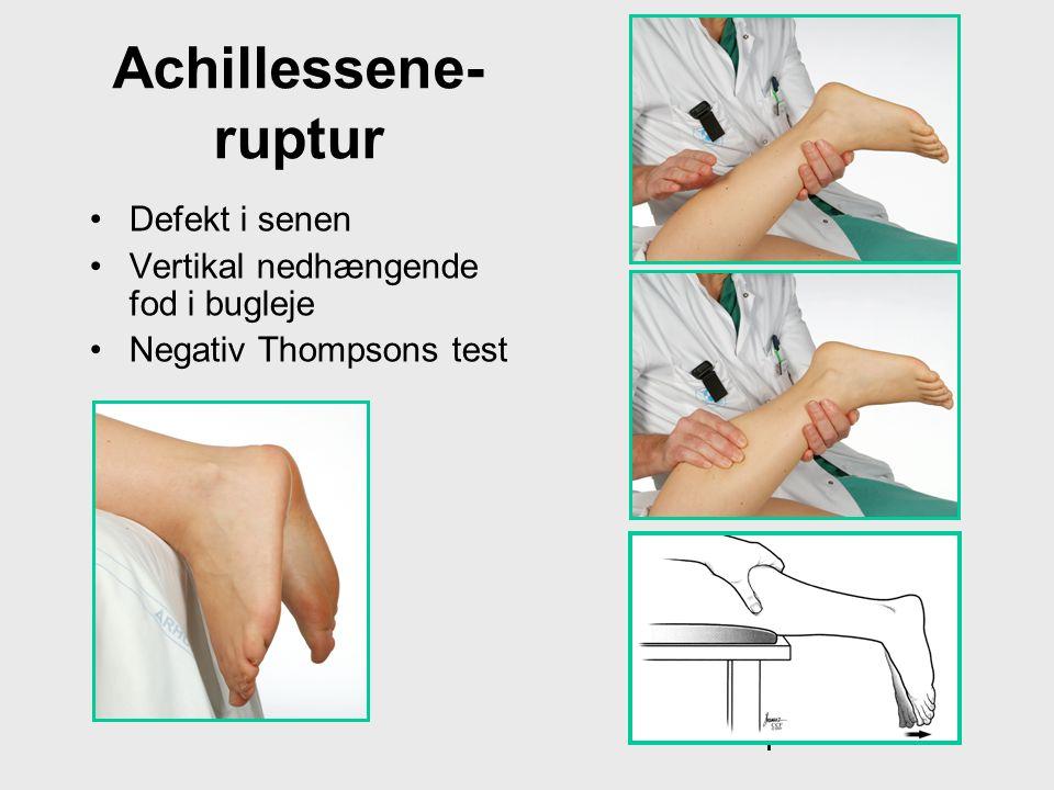 Achillessene- ruptur •Defekt i senen •Vertikal nedhængende fod i bugleje •Negativ Thompsons test Thompsons test