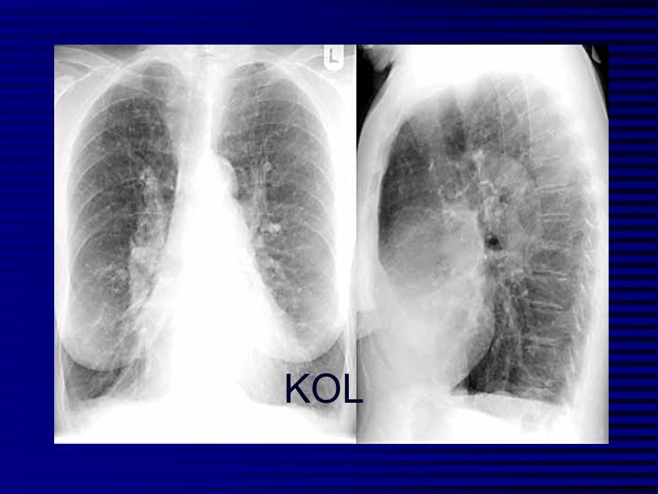 Inflammation Sygdom i de små luftveje Parencymal destruktion Flow begrænsning