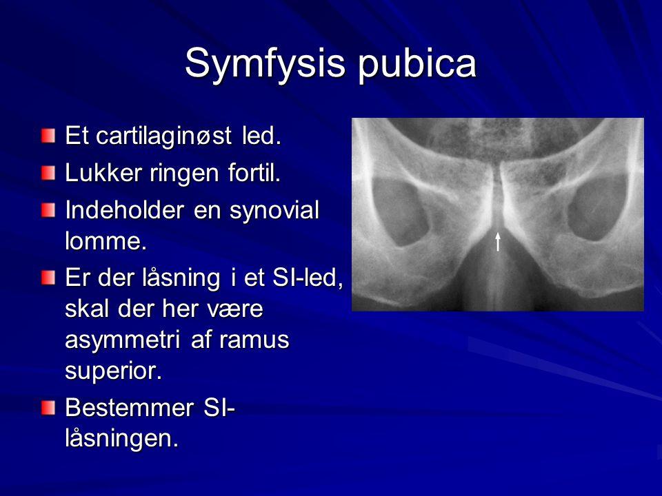 Symfysis pubica Et cartilaginøst led. Lukker ringen fortil. Indeholder en synovial lomme. Er der låsning i et SI-led, skal der her være asymmetri af r