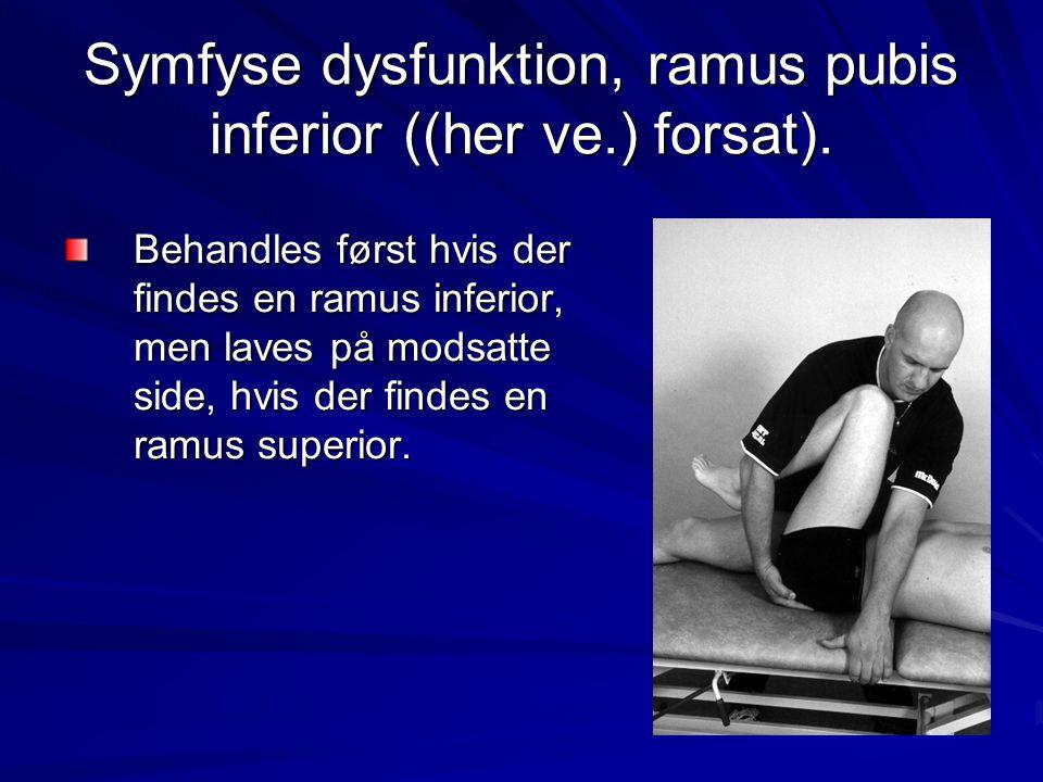 Symfyse dysfunktion, ramus pubis inferior ((her ve.) forsat). Behandles først hvis der findes en ramus inferior, men laves på modsatte side, hvis der