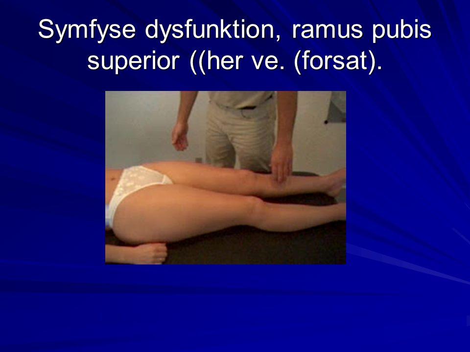 Symfyse dysfunktion, ramus pubis superior ((her ve. (forsat).