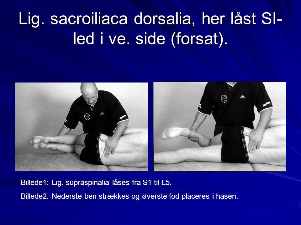 Lig. sacroiliaca dorsalia, her låst SI- led i ve. side (forsat). Billede1: Lig. supraspinalia låses fra S1 til L5. Billede2: Nederste ben strækkes og