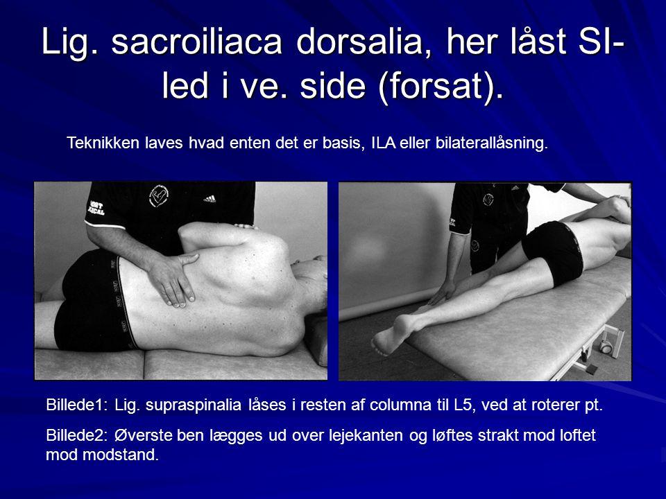 Lig. sacroiliaca dorsalia, her låst SI- led i ve. side (forsat). Billede1: Lig. supraspinalia låses i resten af columna til L5, ved at roterer pt. Bil