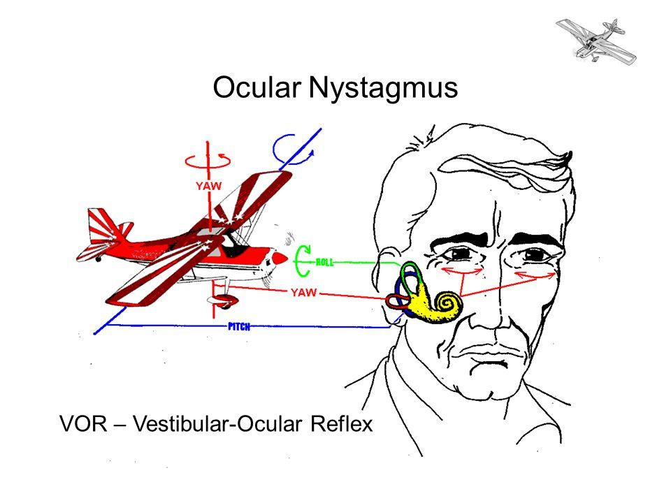 Ocular Nystagmus VOR – Vestibular-Ocular Reflex
