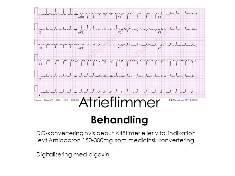 3° AV-Blok Atropin 0,5mg i.v op til 3mg Perkutan pacing – Obs capture også på puls Isoprenalininfusion 0,02-0,2/μg/kg/min Temporær/Permanent pacemaker afhængig af årsag Behandling (bradykardi generelt)