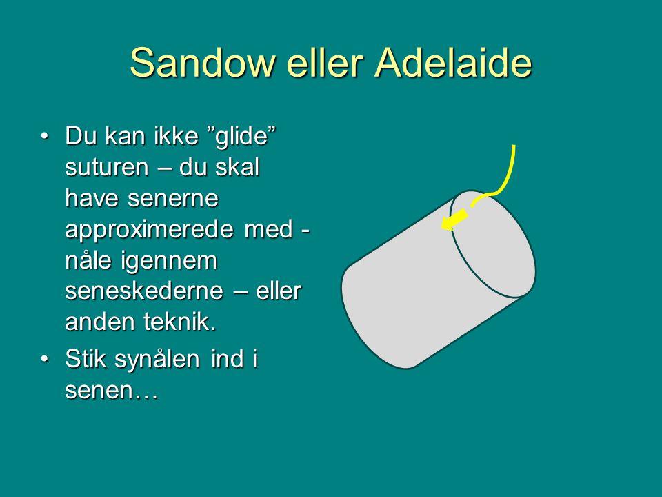 Sandow eller Adelaide •Du kan ikke glide suturen – du skal have senerne approximerede med - nåle igennem seneskederne – eller anden teknik.