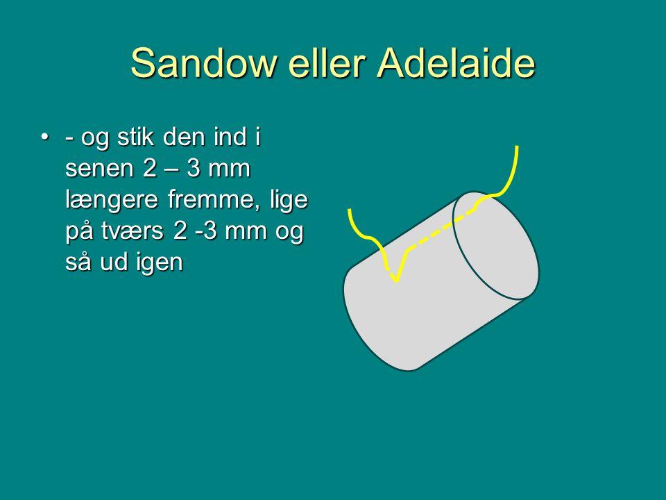 Sandow eller Adelaide •- og stik den ind i senen 2 – 3 mm længere fremme, lige på tværs 2 -3 mm og så ud igen