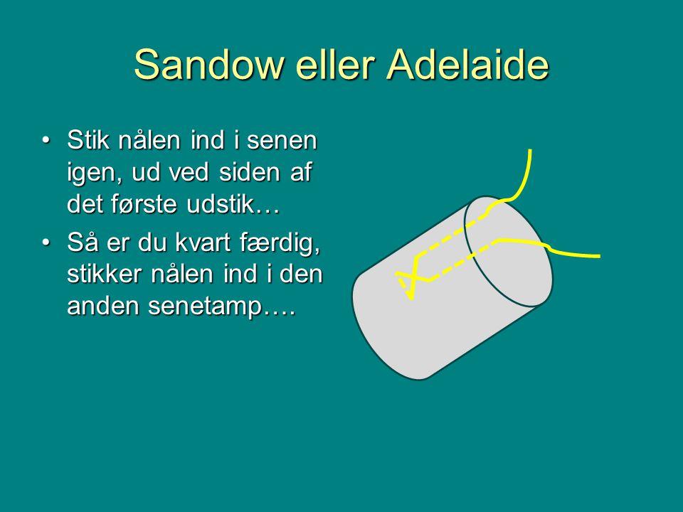 Sandow eller Adelaide •Stik nålen ind i senen igen, ud ved siden af det første udstik… •Så er du kvart færdig, stikker nålen ind i den anden senetamp….