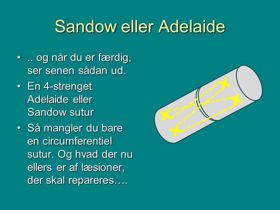 Sandow eller Adelaide •.. og når du er færdig, ser senen sådan ud.