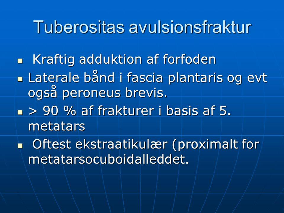 Tuberositas avulsionsfraktur Kraftig adduktion af forfoden Kraftig adduktion af forfoden Laterale bånd i fascia plantaris og evt også peroneus brevis.