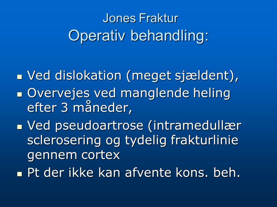 Jones Fraktur Operativ behandling: Jones Fraktur Operativ behandling: Ved dislokation (meget sjældent), Ved dislokation (meget sjældent), Overvejes ved manglende heling efter 3 måneder, Overvejes ved manglende heling efter 3 måneder, Ved pseudoartrose (intramedullær sclerosering og tydelig frakturlinie gennem cortex Ved pseudoartrose (intramedullær sclerosering og tydelig frakturlinie gennem cortex Pt der ikke kan afvente kons.