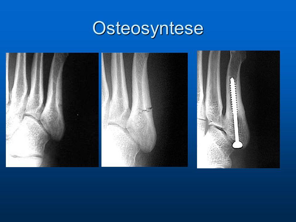 Osteosyntese