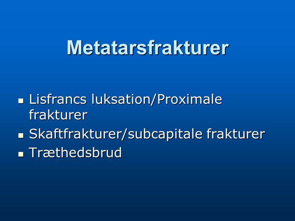 Metatarsfrakturer Lisfrancs luksation/Proximale frakturer Lisfrancs luksation/Proximale frakturer Skaftfrakturer/subcapitale frakturer Skaftfrakturer/