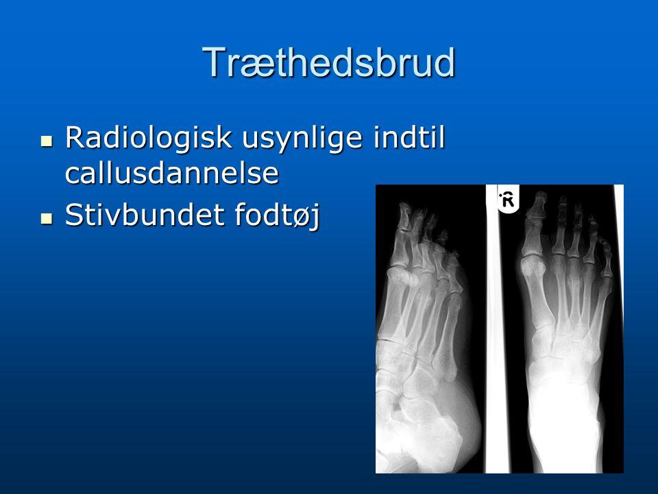 Træthedsbrud Radiologisk usynlige indtil callusdannelse Radiologisk usynlige indtil callusdannelse Stivbundet fodtøj Stivbundet fodtøj