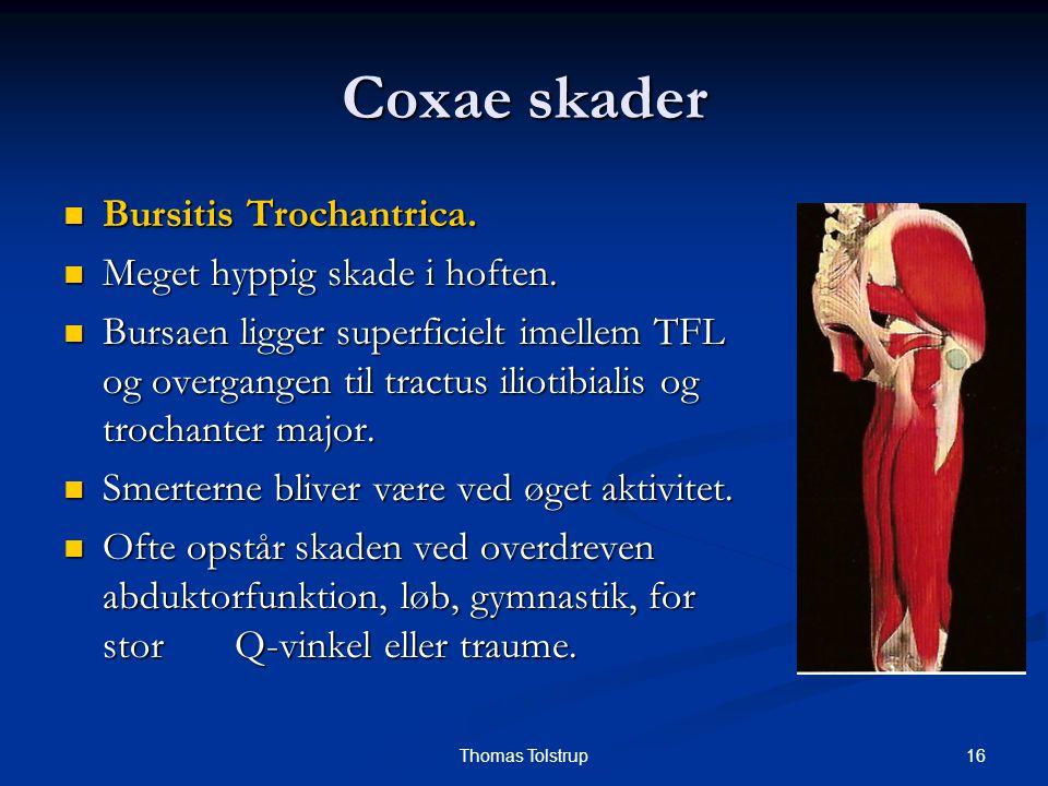 16Thomas Tolstrup Coxae skader Bursitis Trochantrica. Bursitis Trochantrica. Meget hyppig skade i hoften. Meget hyppig skade i hoften. Bursaen ligger