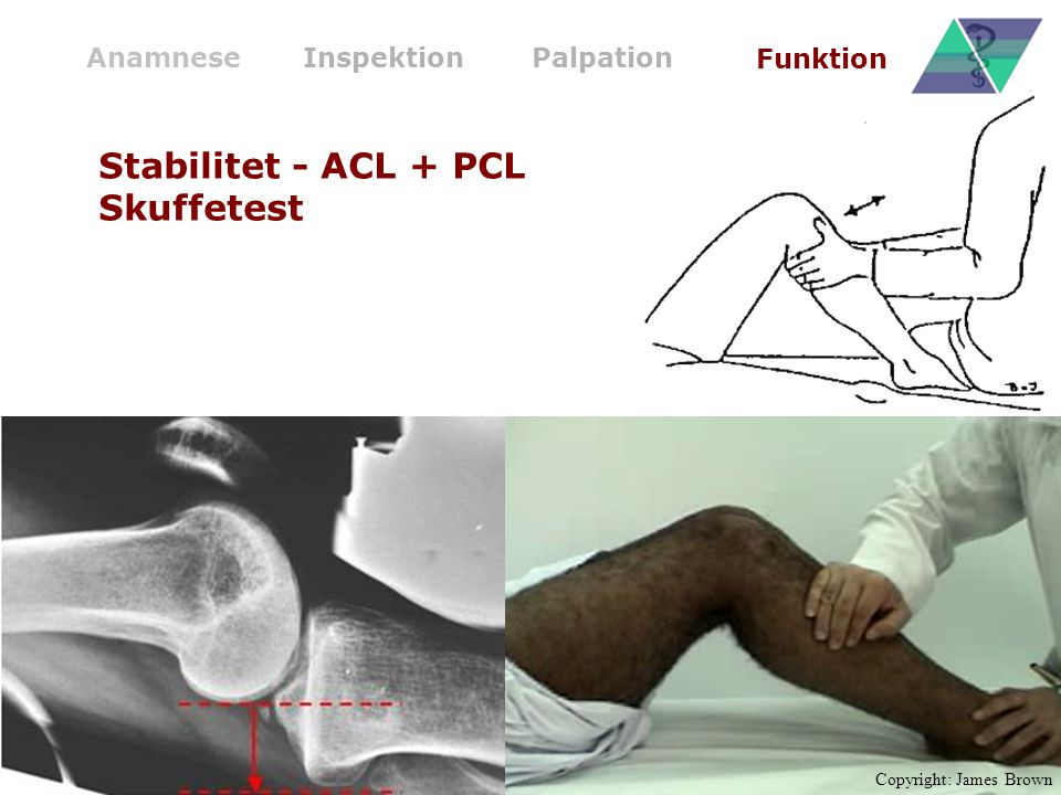 AnamneseInspektionPalpation Funktion Stabilitet - ACL + PCL Skuffetest Copyright: James Brown