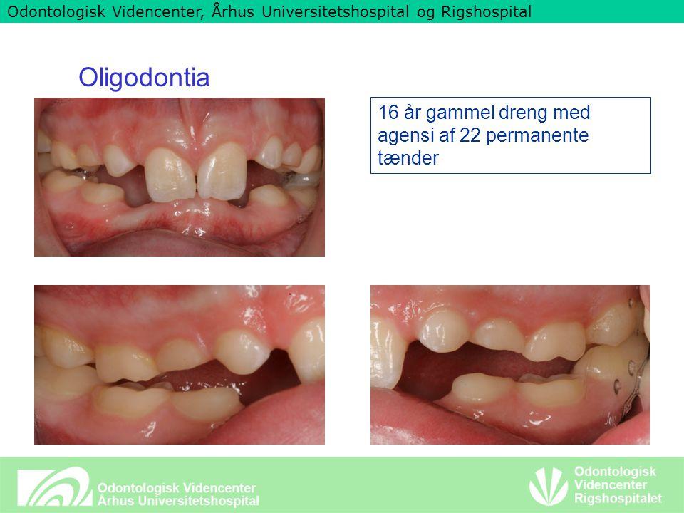 Odontologisk Videncenter, Århus Universitetshospital og Rigshospital Oligodontia 16 år gammel dreng med agensi af 22 permanente tænder