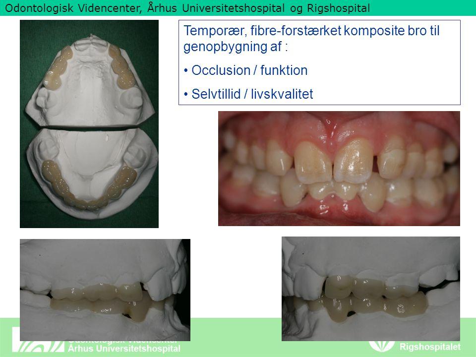 Odontologisk Videncenter, Århus Universitetshospital og Rigshospital Temporær, fibre-forstærket komposite bro til genopbygning af : Occlusion / funktion Selvtillid / livskvalitet