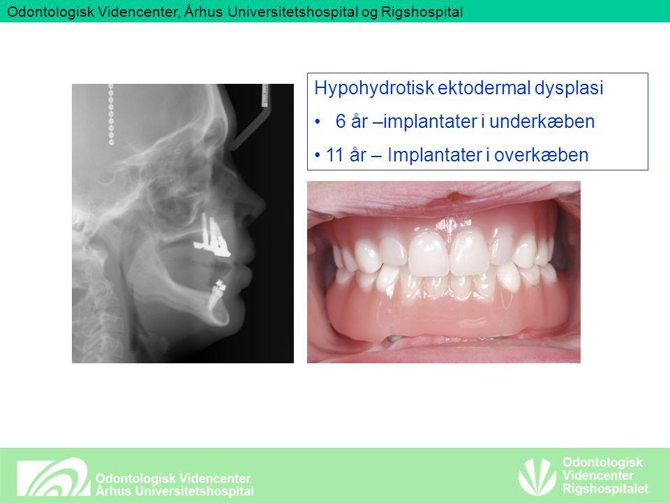 Odontologisk Videncenter, Århus Universitetshospital og Rigshospital Hypohydrotisk ektodermal dysplasi 6 år –implantater i underkæben 11 år – Implantater i overkæben